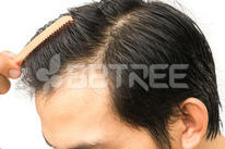Young man serious hair loss problem for health care shampoo and