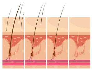 Hair loss storyboard conceptual compositions set with profile macro view of balding scalp skin infographic images vector illustration